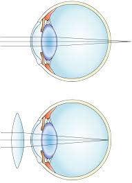 Blind Sighted Synonym Far Sightedness Wikipedia