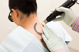 tattoo removal here u0027s what no one tells you about the process