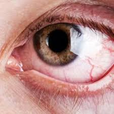 Signs And Symptoms Of Blindness Allergic Conjunctivitis Symptoms Causes And Treatments