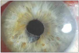 Blindness After Cataract Surgery Crsteurope Complications Of Small Pupil Cataract Surgery