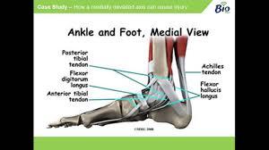 Talar Coalition Subtalar Joint Anatomy Gallery Learn Human Anatomy Image