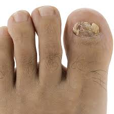 toenail fungus home remedies for better looking nails will simple remedies get rid of your ugly toenail fungus the