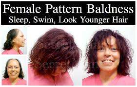 hair weaves for balding men hair loss men and women before and after