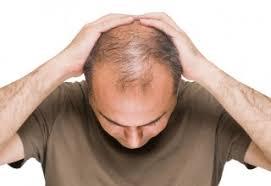 obat rambut penumbuh rambut botak mengatasi rambut rontok obat penumbuh rambut di apotik k24 tumbuh secepat deras air hujan