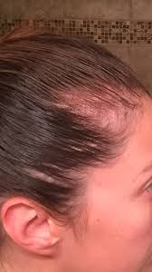 Vitamins That Help With Hair Growth Hair Loss Help October 2016 Babies Forums What To Expect