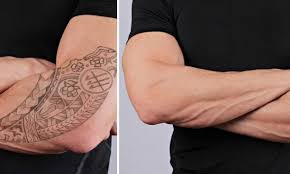 tattoo undone tattoo removal reviews and advice