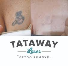 25 best before u0026 after laser tattoo removals images on pinterest