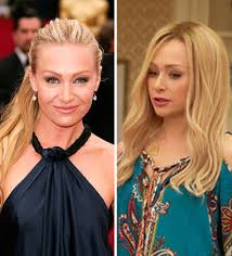 portias hair line portia de rossi plastic surgery rumors swirl after arrested