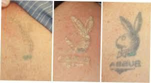 best tattoo removal 2016 with laser ellecrafts