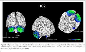 an abnormal cerebellar network in children with autistic spectrum