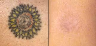 laser ink laser tattoo removal photos laser hair removal photos