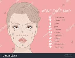 Face Mapping Pimples Acne Face Map Vector Illustration Beauty Stock Vector 466760348