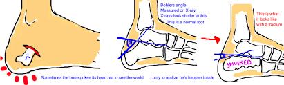 Subtalar Joint Fracture Broken Heel Bone Calcaneus Fracture U2014 Bone Talks