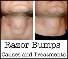 witch hazel for ingrown hair 10 best natural ways to get rid of nasty razor bumps calories fit
