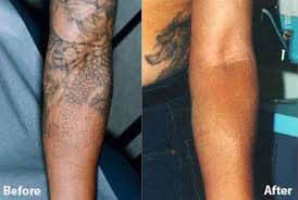 tattoo removal royal tunbridge wells kent uk