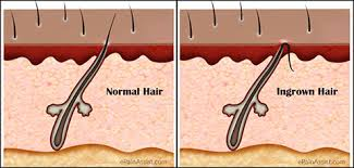 types of ingrown hair what causes ingrown hair and how to get rid of it