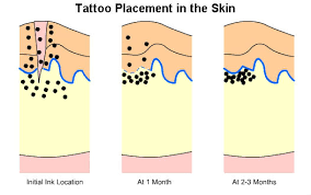 how soon after a new tattoo can you start laser removal