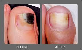 toenail fungus laser treatment boca raton podiatrist