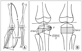 change in effective leg length after angular deformity correction