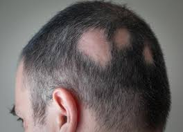 alopecia areata symptoms treatment and tips