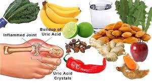 natural gout treatment alkaline plant based diet