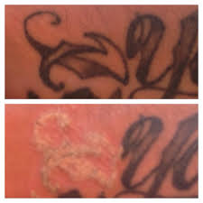 frosting visible immediately after a picosure laser tattoo removal