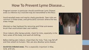 lyme disease information stop ticking around hamilton county