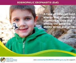 eosinophilic esophagitis eoe