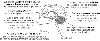 What Portion Of The Brain Controls Respiration Stroke Information Symptoms And Treatment Of Stroke Patient