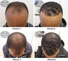 hair growth success u201c u2026best money spent ever staff excellent u2026 u201d