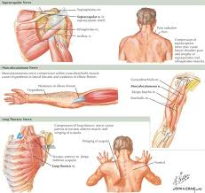 Innervation Of Supraspinatus Mononeuropathies Of The Upper Extremities Neupsy Key