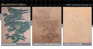 tattoo removal london laser tattoo removal central london tattoo removal best methods