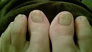 present podiatry cme u0026 conferences diagnosis toenail problem