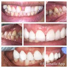 light cure composite filling composite fillings dentist washington heights nyc