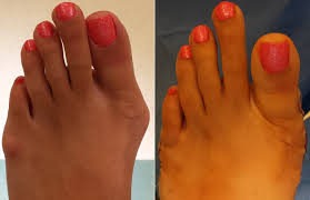 Comfortable Shoes After Foot Surgery Bunion Surgery Orange County Irvine Southern California