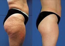 red light therapy cellulite causes of cellulite anti cellulite treatments and solutions quick