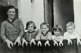cleft hands real people from american horror story freak show