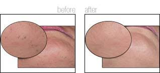 brazilian hair removal pics ideal image laser hair removal before and after photos