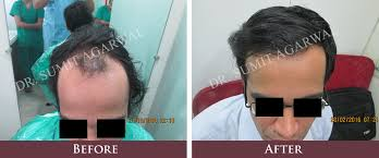 hair transplant in the philppines cost hair transplant in india harleys hair transplant clinic in