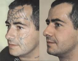 101 best tattoo removal process images on pinterest the