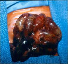 surgical necrotizing enterocolitis articles neoreviews