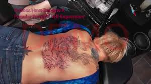 tattoo removal laser tattoo removal tattoo removal cost