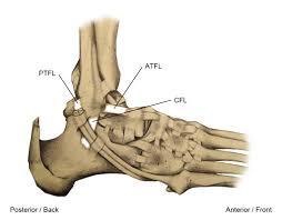 Ankle Ligament Tear Mri Ankle Sprain