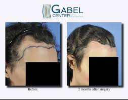 watch a patient s real time growth after 3439 grafts gabel hair