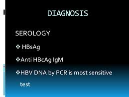 symptoms of hbv light colored stool nausea and light colored stool photo orange stools causes images