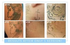 tattoo removal spaderma