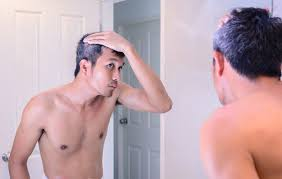 what gets rid of dht in body do you know dihydrotestosteron dht the main cause of hair loss