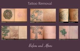 ba tattoo removal jpg