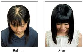 hair transplant for black women maac is one of the best hair transplantation clinic in