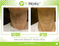 what are wraps it works wraps chin neck before and after photos